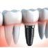 Dental Repairs vs Extraction And Dental Implants